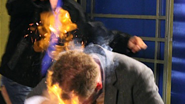 "In this picture released by American magician Wayne Houchin, Houchin's head burns while taping ""Closer To The Stars"" TV program in Santo Domingo, Dominican Republic, Monday, Nov. 26, 2012. Houchin, of Chico, California, is receiving treatment for burns after a local television show host, Franklin Barazarte, lit his head on fire with a flammable cologne while taping the TV program. (AP Photo)"