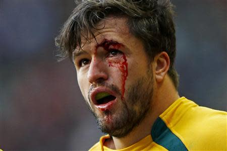 Australia's Ashley-Cooper bleeds from an eye injury during their international rugby union match against England in London