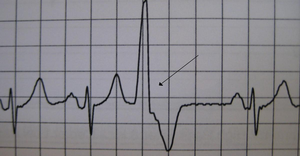 The Afib Information That Shouldn't Be Missed...