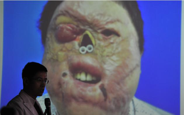 A doctor talks to the press in front of a picture of Yan, 29, whose face was disfigured after being electrified last October, during a news conference at a hospital in Shenyan