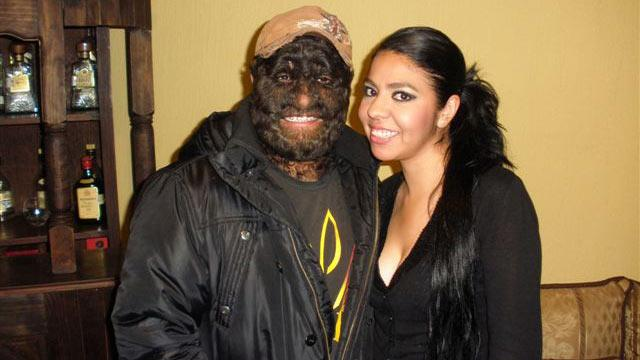 'Wolfman' Likes Hairy Face, As Do Ladies
