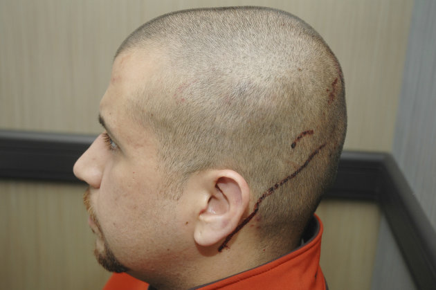 This Feb. 27, 2012 photo released by the State Attorney's Office shows George Zimmerman, the neighborhood watch volunteer who shot Trayvon Martin, with blood on the back of his head. The photo and rep