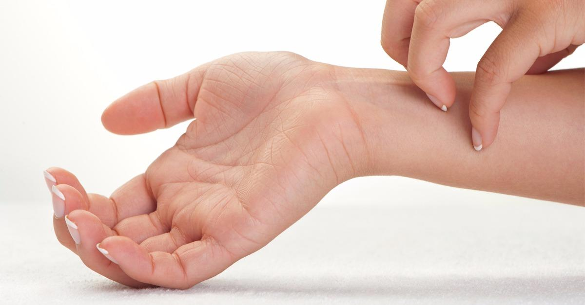 How Are Psoriasis and Psoriatic Arthritis Linked?