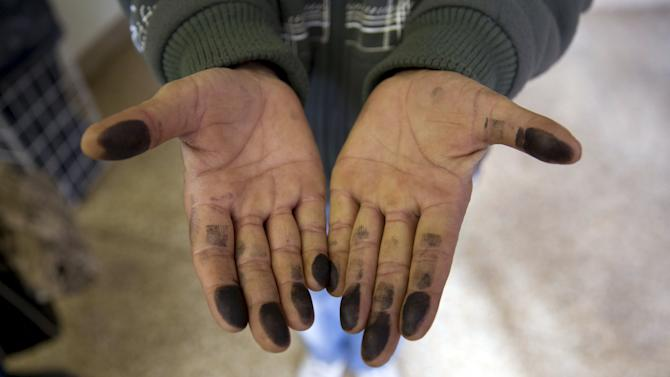 Asylum seeker shows his inked fingers at the central receiving facility for refugees in Berlin