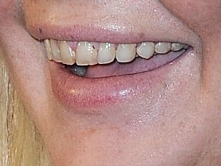 A closeup of Lohan's yellow teeth. Photo by Getty Images