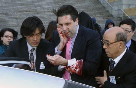 U.S. Ambassador to South Korea Lippert leaves after he was slashed in the face by an unidentified assailant at a public forum in central Seoul