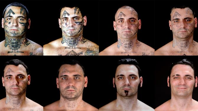 """This combination of eight photos provided by Bill Brummel Productions shows the progress of tattoo removal treatments for former skinhead Bryon Widner. For 16 years, Widner was a glowering, swaggering, menacing vessel of savagery - an """"enforcer"""" for some of America's most notorious and violent racist skinhead groups. Though his beliefs had changed, leaving the old life would not be easy when it was all he had known - and when his face remained a billboard of hate. (AP Photo/Duke Tribble, Courtesy of MSNBC and Bill Brummel Productions)"""