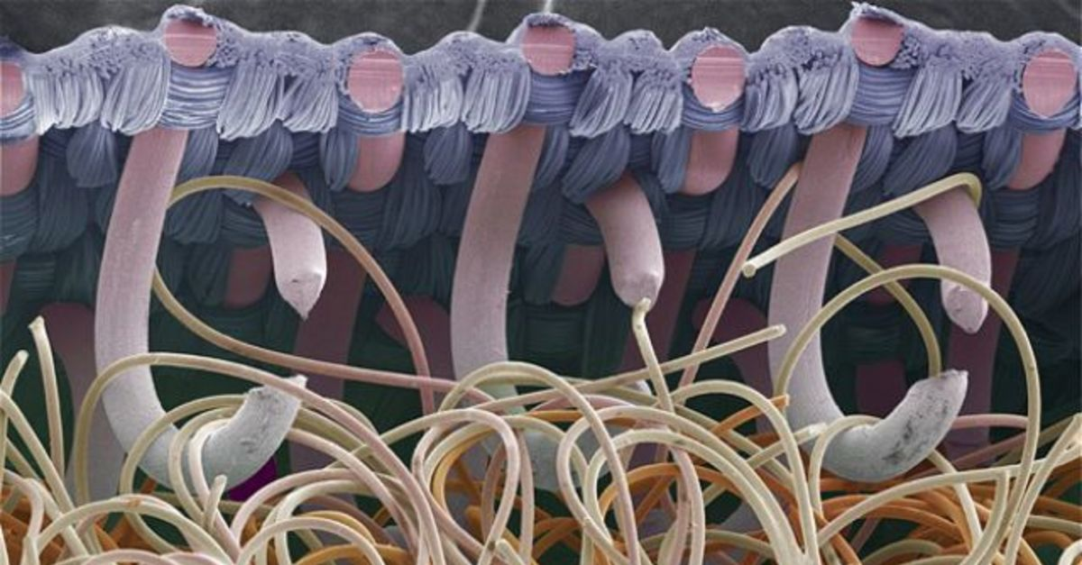 20 Everyday Things Fascinating Under A Microscope