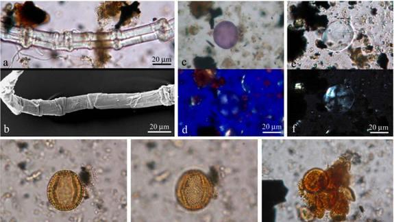 Ancient Shipwreck Reveals 2,000-Year-Old Eye Medicine