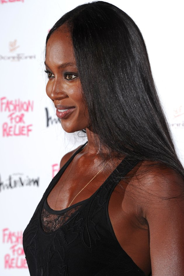 Naomi Campbell, hairline, balding