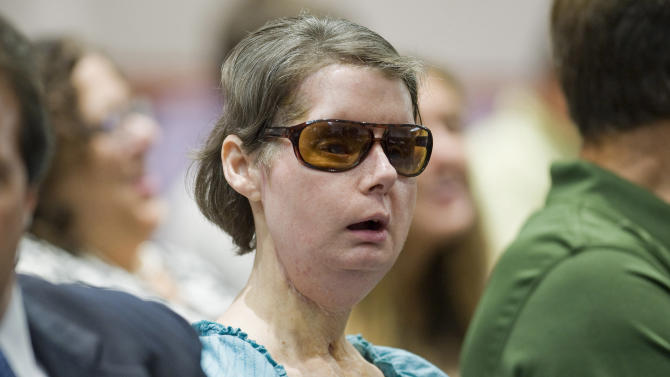 FILE - In this Aug. 10, 2012 file photo, Charla Nash sits before a hearing at the Legislative Office Building in Hartford, Conn., to determine whether she may sue the state for $150 million in claimed damages. Nash, who was mauled by a friend's chimpanzee in 2009, is making a last-ditch appeal to legislators in her bid to sue the state for $150 million, saying the attack has left her so her reliant on others that she feels like she is locked in a cage. (AP Photo/Jessica Hill, File)