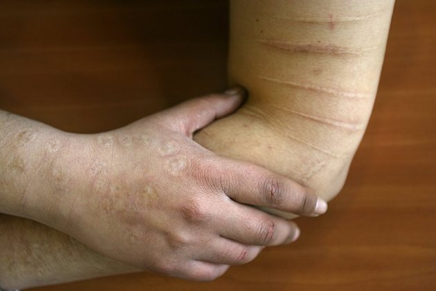 A mental health patient shows the scars from self-inflicted injuries