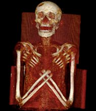 Researchers examined a 2,900-year-old mummy using X-rays, CT and magnetic resonance imaging (MRI) scans. They found that he suffered from Hand-Schuller-Christians disease, a very rare condition that left him with lesions in his skull and spine