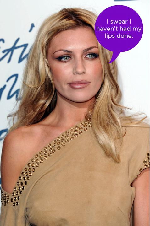 Abbey Clancy dismissed rumours that she's had collagen injections in her lips to plump them up. She tweeted this comment along with the hashtag #foralltheintelligentpeopleoutthere. Well, that told us