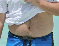 The infamous tummy shot that got Troy to try CoolSculpting.