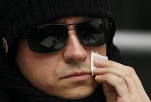 Filin, artistic director of Russia's Bolshoi Ballet, wipes his face during a news conference in a hospital in the western German city of Aachen