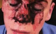 Image Shows Boy Injured In Gang Attack
