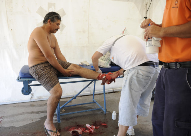 "A man is treated after he was bit by a palometa, a type of piranha, while wading in the Parana River in Rosario, Argentina, Wednesday, Dec. 25, 2013. Lifeguards director Federico Cornier said Thursday that thousands of bathers were cooling off from 100 degree temperatures in the Parana River on Wednesday when bathers suddenly came to them complaining of bite marks on their hands and feet. He blamed the attack on palometas, ""a type of piranha, big, voracious and with sharp teeth that can really bite."" (AP Photo/La Capital, Silvina Salinas)"