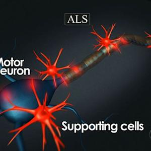 Thanks to research, ALS less of a mystery