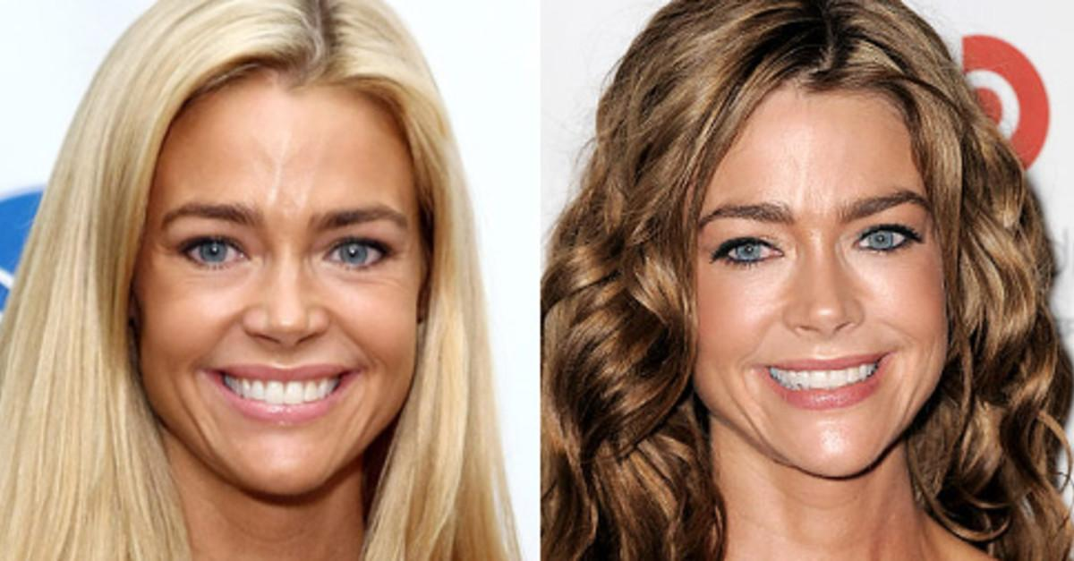 8 Celebs Who Regret Their Plastic Surgery