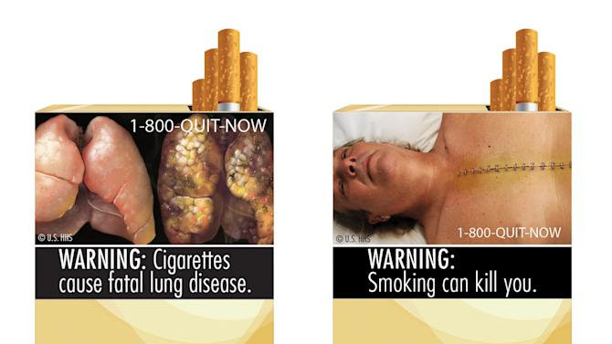 FILE - This file combination photo made from file images provided by the U.S. Food and Drug Administration shows two of nine cigarette warning labels from the FDA. A federal appeals court on Friday, Aug. 24, 2012, upheld a decision barring the federal government from requiring tobacco companies to put large graphic health warnings on cigarette packages to show that smoking can disfigure and even kill people. (AP Photo/U.S. Food and Drug Administration, File)