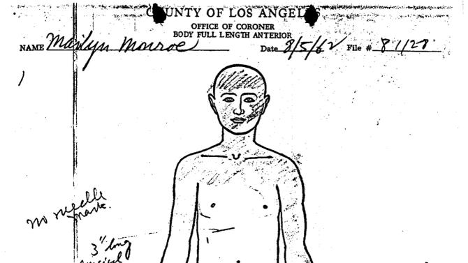 his photo of a document provided by the Los Angeles County Coroner shows the autopsy report for actress, Marilyn Monroe, dated Aug. 5, 1962. The autopsy report describes how she was found, and includes detailed descriptions of her body, surgical scars, organs and all, and an accounting of prescription medications. (AP Photo/Los Angeles County Coroner)