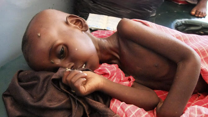 Farhiya Abdulkadir, 5, from southern Somalia and suffering from malnutrition lies on a bed at Banadir hospital in Mogadishu, Somalia, Wednesday, July 27, 2011. More than 11 million people are estimated to need help in East Africa's worst drought in 60 years, in Kenya, Ethiopia, Somalia, Eritrea and South Sudan. (AP Photo/Farah Abdi Warsame)