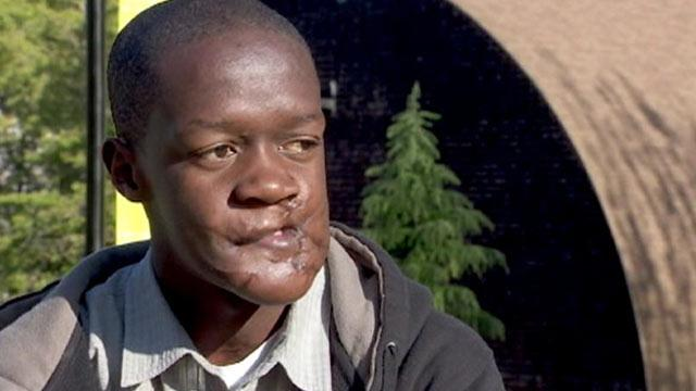 Maimed African Teen's Amazing Journey to America