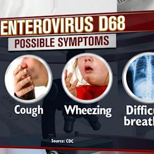 CDC investigates possible link between enterovirus D68 and paralysis in children