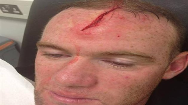 Wayne Rooney posts a picture of his head injury (Facebook)