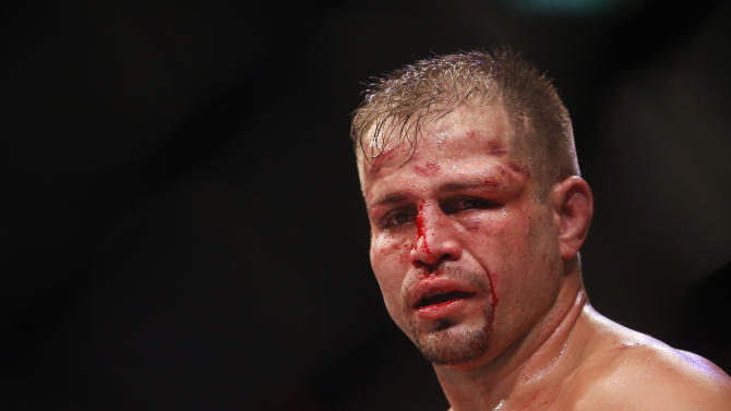 Fabio Maldonado reacts after being defeated by countryman Glover Teixeira at UFC 153. (AP)