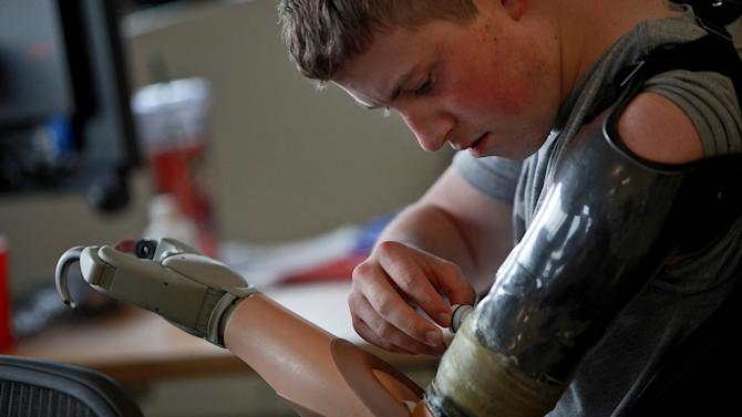 FILE - In this Wednesday, March 7, 2012 file photo, Army Pfc. Kevin Trimble, 19, adjusts his myoelectric upper limb prosthetic for occupational therapy at the Center for the Intrepid at Brooke Army Medical Center in San Antonio. At 19, Kevin has lost both legs above the knee and an arm from a bomb in Afghanistan. A staggering 45 percent of the 1.6 million veterans from the wars in Iraq and Afghanistan are now seeking compensation for disabilities they say are service-related - more than double the 21 percent who filed such claims after some previous wars, according to top government officials. The new veterans have different types of injuries than previous veterans did, in part because improvised bombs have been the main weapon and because body armor and improved battlefield care allowed many of them to survive wounds that in past wars proved fatal. (AP Photo/San Antonio Express-News, Lisa Krantz, File) RUMBO DE SAN ANTONIO OUT; NO SALES; MANDATORY CREDIT