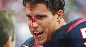 Texans LB Cushing has torn ACL