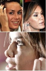 UK Celebrity Tara Palmer-Tomkinson after her nose collapsed from excessive cocaine abuse.