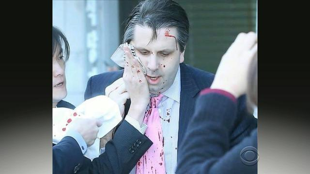 US ambassador to SKorea slashed on face and wrist in attack