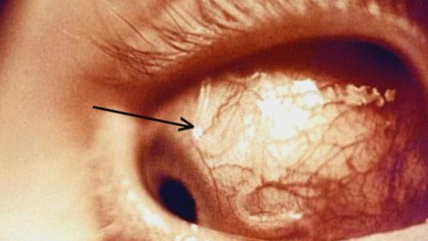 Teen nearly goes blind from eye-eating parasite on contact lens