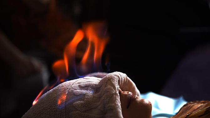 """A woman undergoes """"fire therapy"""" in Beijing, June 17, 2014"""