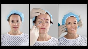 Botox eliminates wrinkles but it can also make you look mean. Photo by Thinkstock