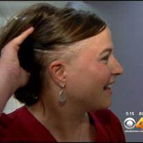 'Cold Cap Therapy' Helps Cancer Patients On Chemo Keep Their Hair