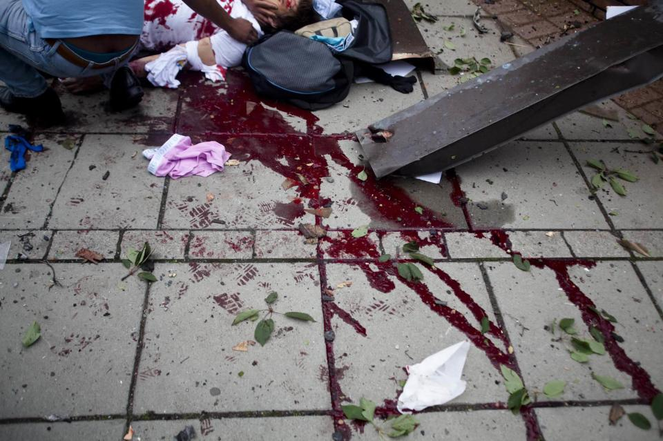 Blood smears the pavement, as a victim is treated outside government buildings in the center of Oslo, Friday July 22, 2011, following an explosion that tore open several buildings including the prime minister's office, shattering windows and covering the street with documents. (AP Photo/Fartein Rudjord)