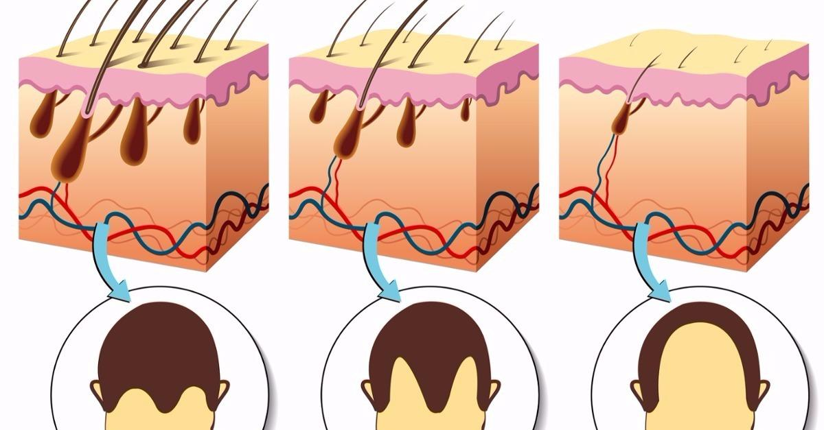 The Real Reasons You're Losing Your Hair