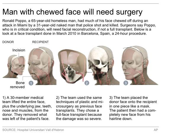 Graphic shows procedure used in a facial tissue transplant surgery done in 2010.