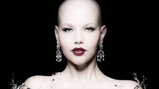 Plus Model Elly Mayday Continues to Pose Despite Bald Head, Scars