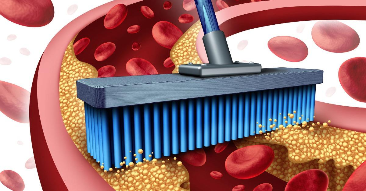 Top 3 Risks of High Cholesterol