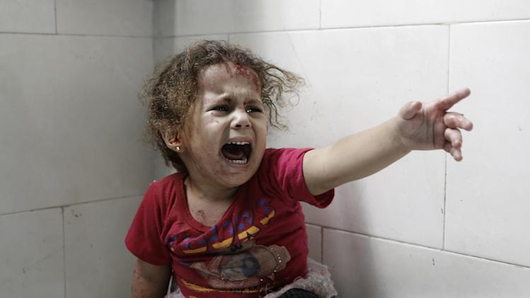 A Palestinian child screams while receiving treatment at the al-Shifa hospital in Gaza City, on July 18, 2014