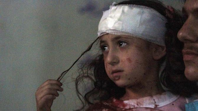 A girl, injured from what activists say were air strikes by forces loyal to Syria's President Assad, rests in a hospital in Douma