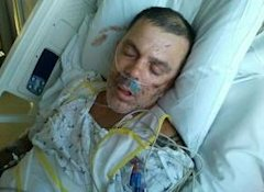 Justice for Trayvon: Alabama Man in Critical Condition After Mob Beating   Matthew Owens   Mobile