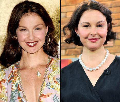 Ashley Judd's Puffy Face Explained