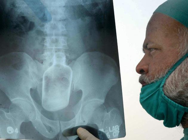 Shocking X-Rays