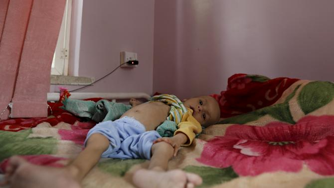 Malnourished child lies in a bed at a hospital in Yemen's capital Sanaa